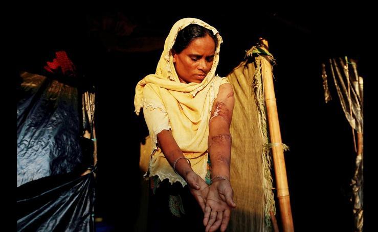 Las heridas de guerra de los rohingya