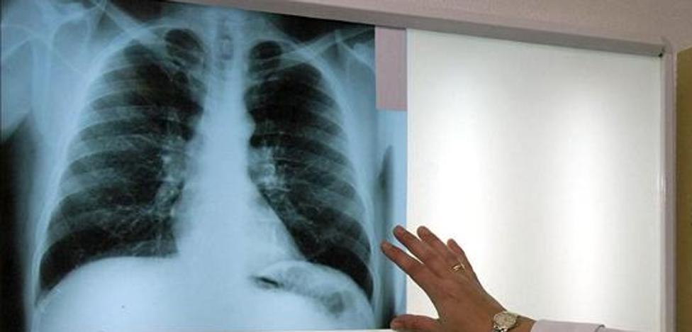 La Seguridad Social reconoce que el amianto es el causante del cáncer de dos extrabajadores guipuzcoanos