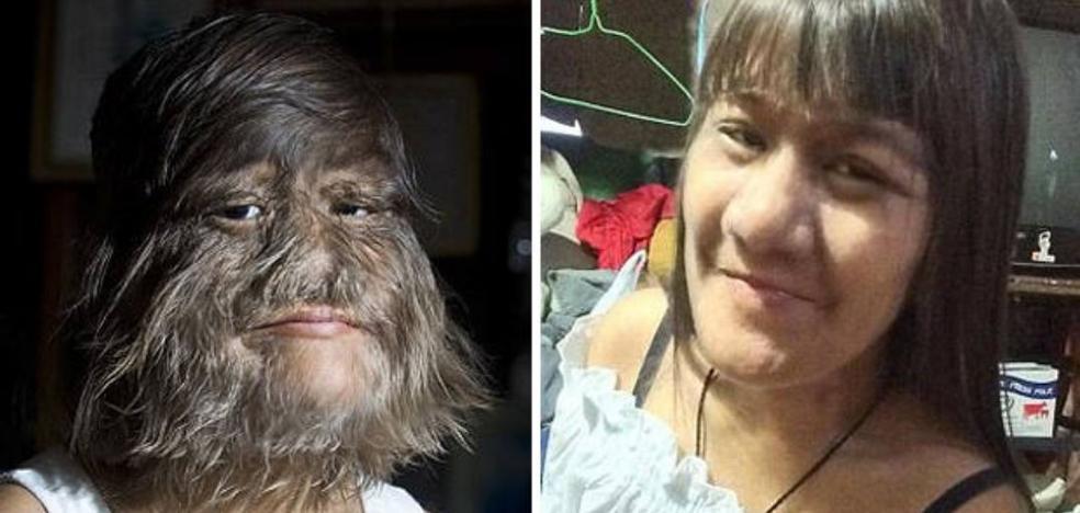 La mujer más peluda del mundo se afeita para casarse