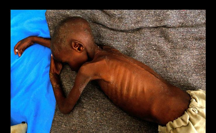 Niños al borde de la muerte en el Congo