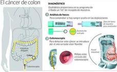 Los programas de prevención reducirán un 26% las muertes por cáncer colorrectal en 30 años