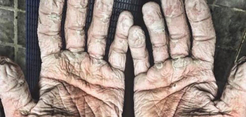 Las espeluznantes manos de un doble oro olímpico que rema en el Ártico