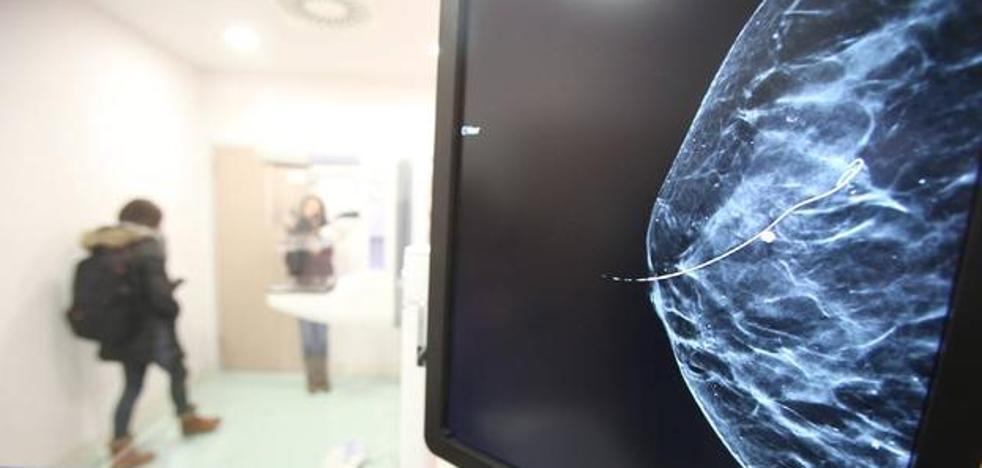 Científicos españoles hallan indicadores para atacar el cáncer de mama más grave