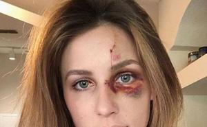 Un piloto de Motocross da una paliza a su novia por una foto de Instagram