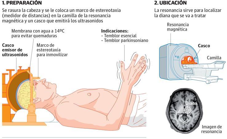 Tratamiento para suprimir el temblor con ultrasonidos