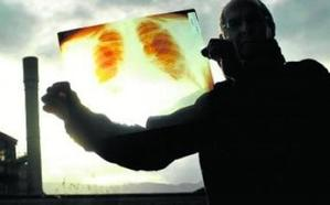 El TSJPV ratifica como enfermedad profesional el cáncer de pulmón de un trabajador guipuzcoano