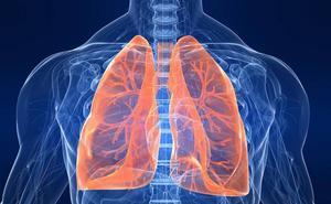 Un grupo de proteínas ayuda a predecir la recaída en el cáncer de pulmón