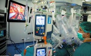 ¿Te dejarías operar por un robot?