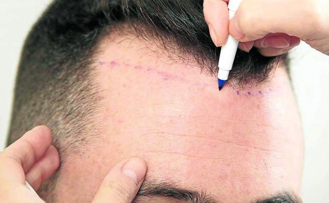 «Un trasplante no es como ir al peluquero»