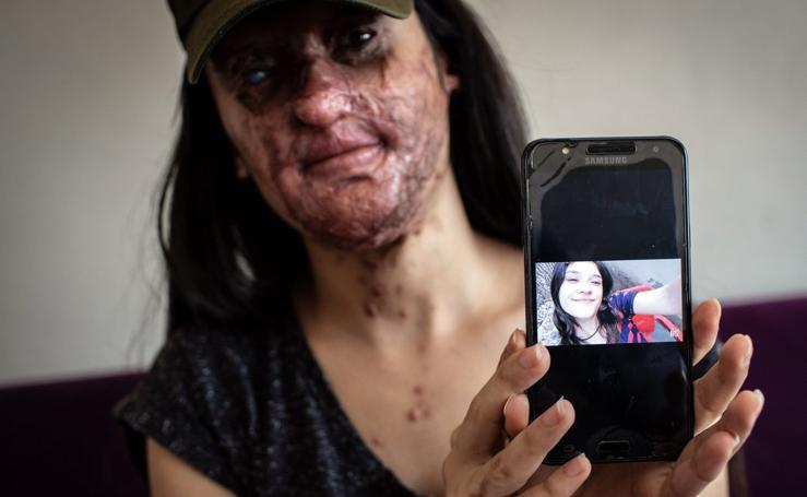 «Ésta no es mi cara, es el rostro de la desgracia de nuestra sociedad»