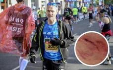 Martín Fiz, mordido por un perro mientras corría
