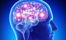 «La edad es el mayor factor para desarrollar una enfermedad cerebral»