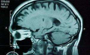 El gadolinio, clave para detectar tumores cerebrales, podría ser tóxico