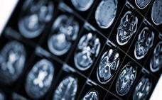 Expertos prevén contar con fármacos para frenar el Alzheimer en cinco años y con una vacuna a corto plazo