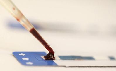 GIB, C hepatitis eta sifiliaren test azkarrak egingo dituzte Donostian
