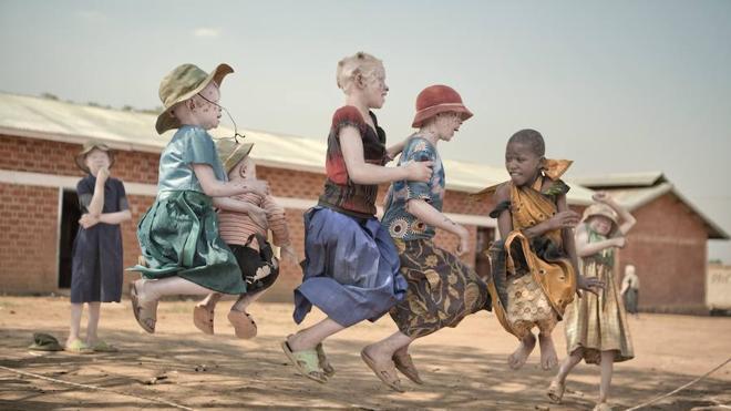 La maldición del albinismo